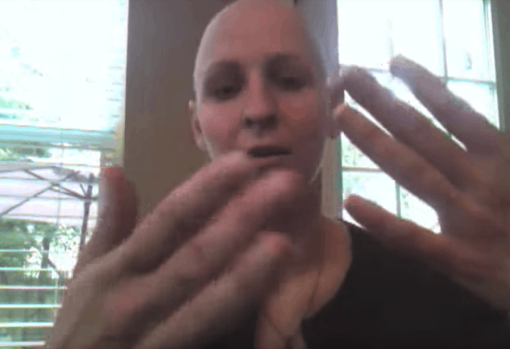 What its like to have chemo