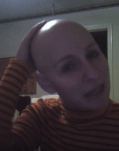 Bald Head After Chemo - breast cancer blog austin texas