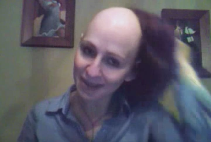 breast cancer update after chemo 3 for breast cancer - wig, bald head