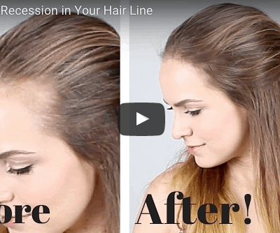 How to Hide Hairline Recession with 4 Easy Steps